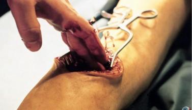 Анатомия 2. Кадры