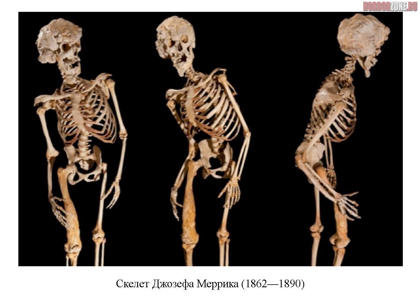 skelet-d.-merrika_.jpg