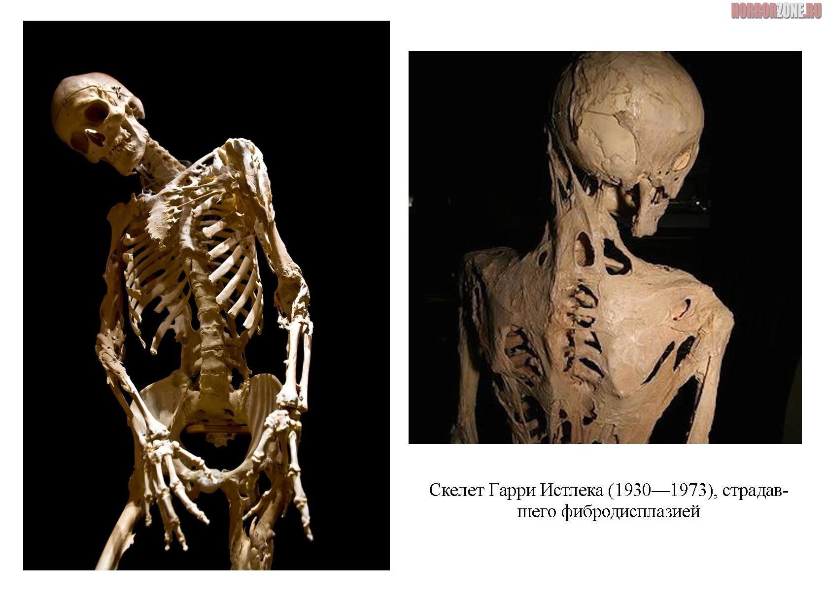 skelet-garri-istleka.jpg