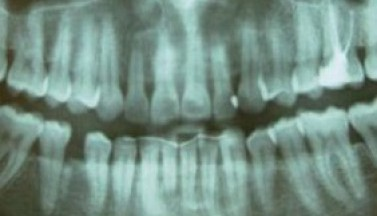 Шестой зуб